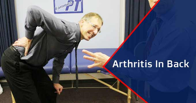 Treatments of Arthritis In Back