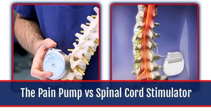 Pain Pump vs Spinal Cord Stimulator